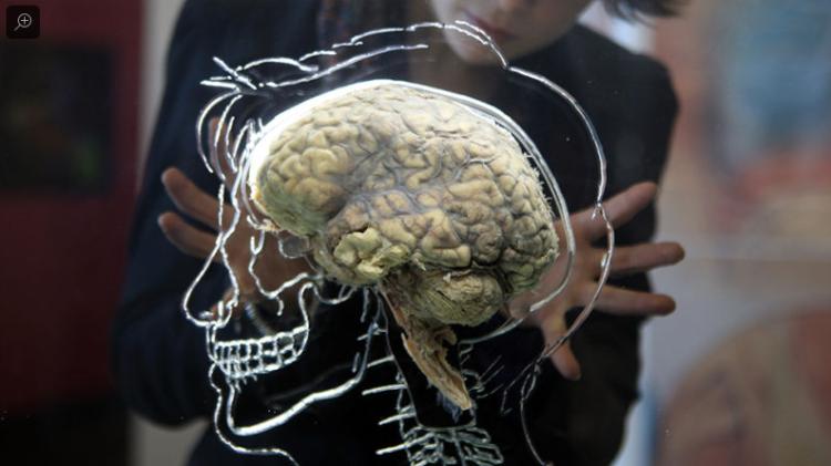 cerebro amo